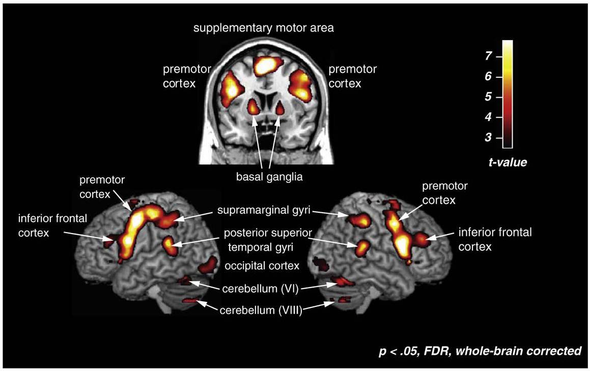 Image from Grahn, J. A., Henry, M. J., & McAuley, J. D. (2011). FMRI investigation of cross-modal interactions in rhythm perception: Audition primes vision, but not vice versa. NeuroImage, 54(2),1231-1243.